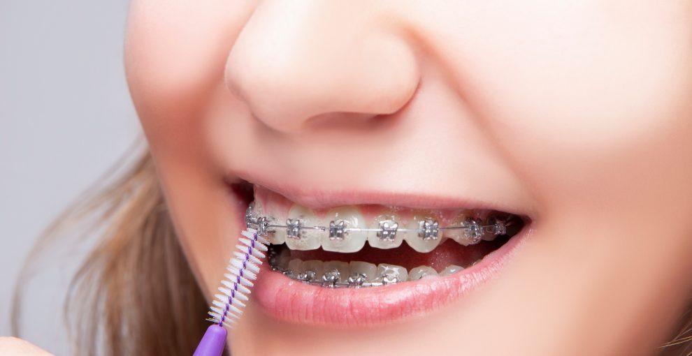 ความนิยมการดัดฟันแฟชั่นในยุคนี้ใคร ๆ ก็ทำ